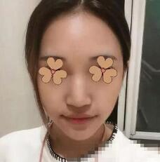 北京润美玉之光整形鼻翼缩小案例 不再是肥大的宽鼻了