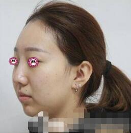 无锡爱思特整形面部吸脂案例 术后一个月的面部匀称线条柔和