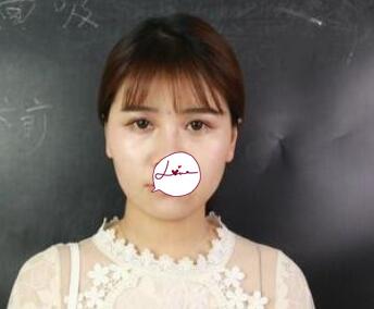 北京医科整形王淑杰医生面部吸脂案例 术后三个月脸型变得好看 瘦