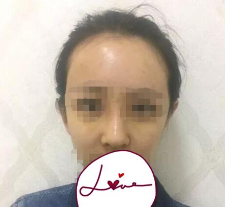 黑龙江艺星整形巫文云医生隆鼻修复案例 术后三个月鼻子恢复很好
