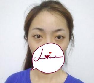 北京协和整形赵茹医生双眼皮案例 术后眼睛变得很好看很自然