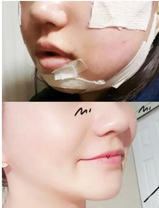 郑州辰星整形面部吸脂案例 术后慢慢消肿,脸小巧了很多
