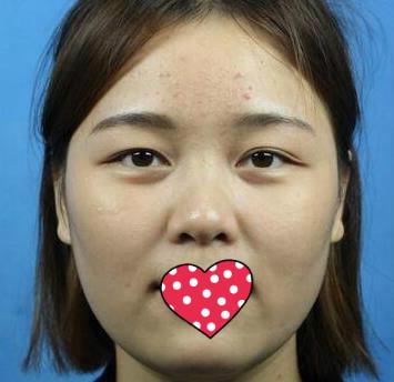 广州时光整形下颌角整形案例  我的脸型变美了