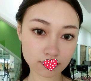 北京八大处整形祁佐良医生下颌角手术案例  塑造美丽的瓜子脸