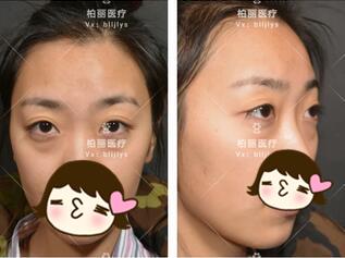 北京柏丽整形眼部综合案例 术后两个月,看起来很秀气