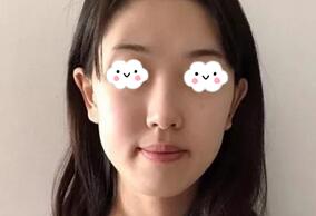 武汉美基元整形肋软骨隆鼻案例 术后3个月,这款鼻型我是真的爱了
