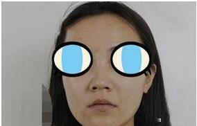 北京八大处赵延勇医生隆鼻案例 正面还是侧面看上去都很自然