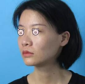 杭州格莱美整形鼻综合案例 我也是拥有完美侧颜的人了