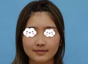 北京八大处王克明医生隆鼻案例 比起原来好看多了