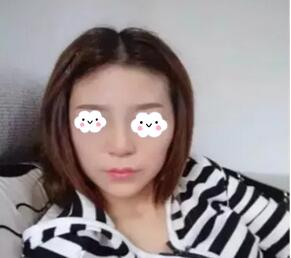 沈阳元辰整形硅胶隆鼻案例 侧面还是正面都很符合我的脸型