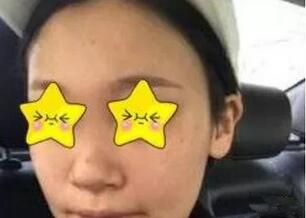 杭州时光整形吕敏医生隆鼻案例 正面拍照,侧面拍照都非常漂亮