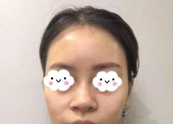 上海美仑整形李元山医生隆鼻案例 如今的我自拍后无需p图了