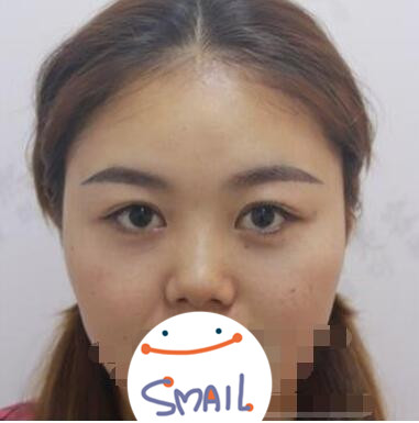 上海九院整形耳软骨隆鼻案例 术后鼻子恢复得高挺立体好看