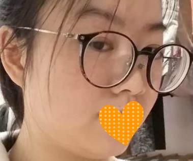 上海伊莱美整形去颊脂垫案例 瞬间年轻了好几岁