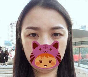 北京壹加壹整形纹眉案例 没有那种黑乎乎的很假的感觉