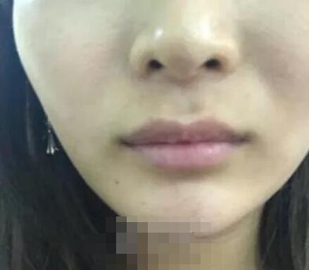 长春中心医院玻尿酸丰唇案例 术后一周性感美唇都很饱满很好看