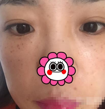 随州艾琳整形激光祛斑案例 现在的脸看起来又白又亮