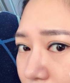 贵阳美莱整形隆鼻案例 拥有明星般的美鼻