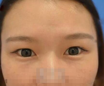 上海伊莱美整形张余光医生双眼皮案例 术后眼睛变得超级美 很动人