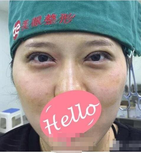 郑州美眼整形双眼皮案例 术后眼睛变得很自然很楚楚动人