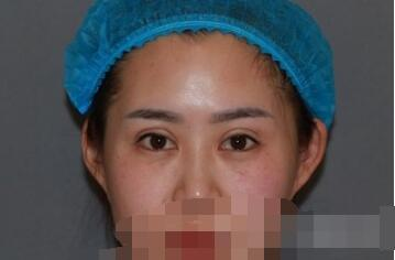 广州韩妃整形李光琴双眼皮修复手术案例 自拍了一下照片分享下啦