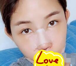 浙江省中医院整形鼻部综合术案例 术后80天鼻子变得好看又自然