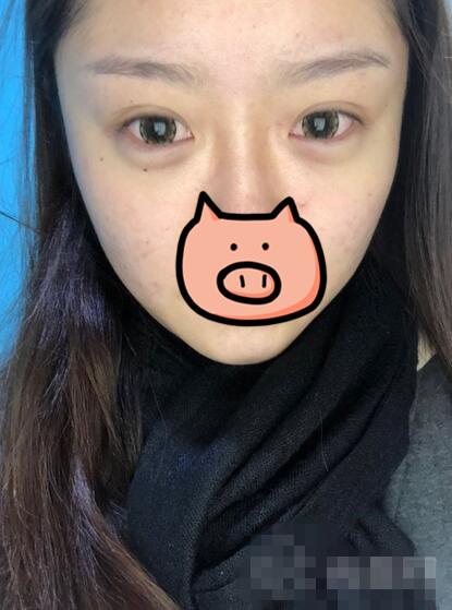 青岛市立医院整形纹眉案例 现在再也不会担心化眉毛了