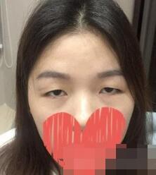 深圳人民医院整形王丽妮医生双眼皮修复案例 术后拯救我的美眼