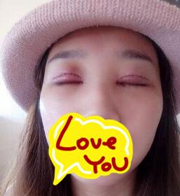 青岛友谊整形双眼皮案例 术后三个月眼睛变得很有神也很自然