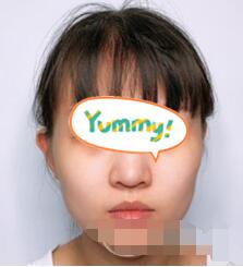 吉大一院整形自体脂肪填充脸部案例 术后半个月脸型恢复得很好看