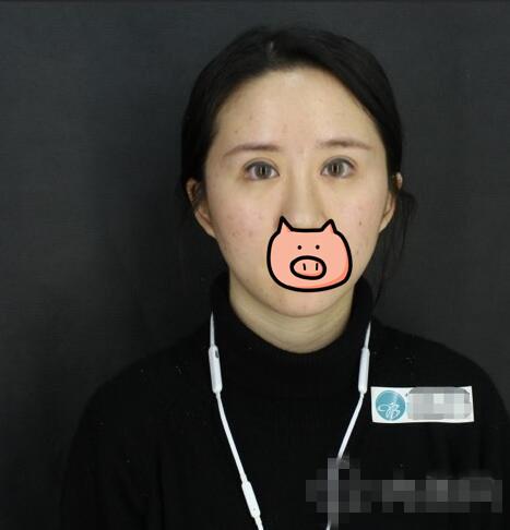 北京伊美尔整形瘦脸注射案例 脸真的变小了走路上都带风