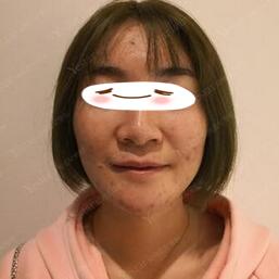 南京艺星整形激光去痘印案例 痘印消失了自信回来啦