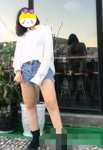 桂林时光整形360溶脂减肥案例 朋友跟她说可以去当模特了