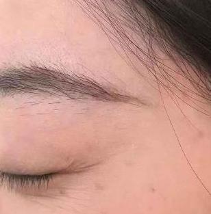 杭州瑞丽整形去眼角纹案例 让你做妙龄女子