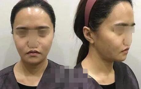 北京加减美整形穆宝安医生面部提升案例 术后效果是大家看得到的