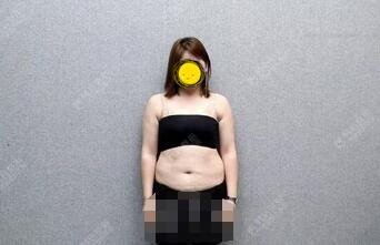 广州韩后整形全身吸脂案例 青春的脸蛋,性感的线条