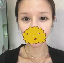 深圳恩吉娜整形纹眉案例 每天都可以多睡一会儿出门