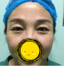内蒙古诺伊美整形纹眼线案例 之前是一副没睡醒的样子,改善很多