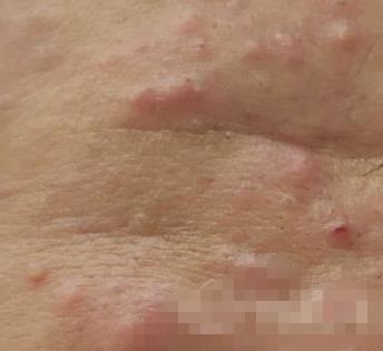 淄博齐都整形激光祛痘案例 结痂后皮肤光滑滋润