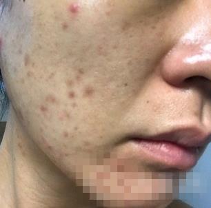 烟台京韩整形激光祛痘案例 术后皮肤恢复光滑白嫩自信心也回来了