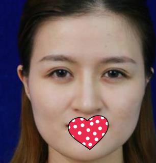 厦门海峡整形磨骨手术案例 改变面容让脸型更加