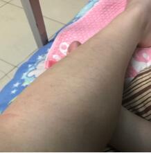 长春京典整形激光脱腿毛案例 一个月来医院做一次就行了