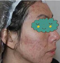 驻马店肤康皮肤病医院祛痘祛痘印案例 真的是满脸痘到变少了