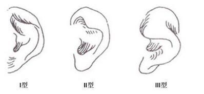 外耳畸形在学龄前和5岁以后哪个年龄阶段矫正效果更好
