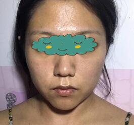 无锡菲尚整形激光祛斑案例 白嫩有光泽的皮肤谁不喜欢