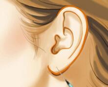 让你小的耳垂变得更饱满精致――玻尿酸丰耳垂