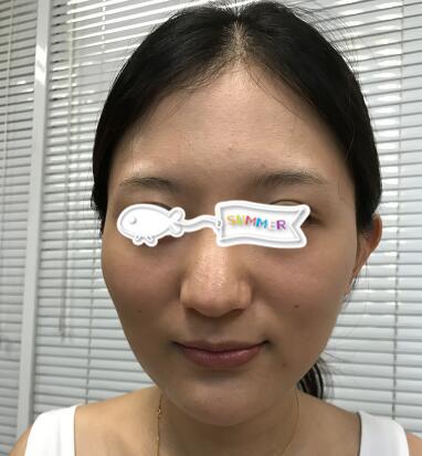 北京美莱整形孙立春医生玻尿酸丰太阳穴案例