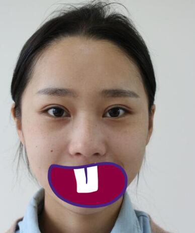 北京中日友好整形薛志强医生鼻翼缩小案例 术后鼻子变得很秀气