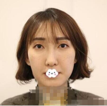 上海伊莱美整形李耐国医生面部除皱案例 术后美白光滑肌肤上线了