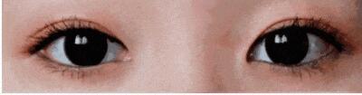 【干货科普】不同年龄的人群做的双眼皮竟然差别这么大